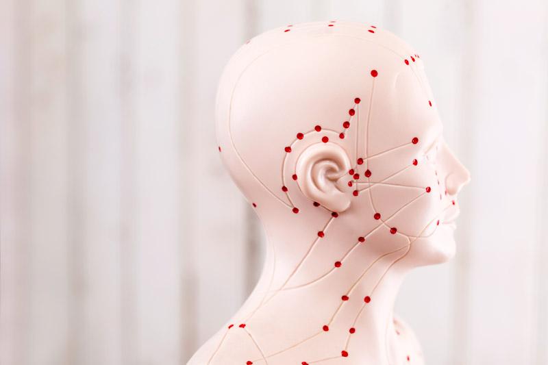 Acupuncture, Denver, treatment, alternative health