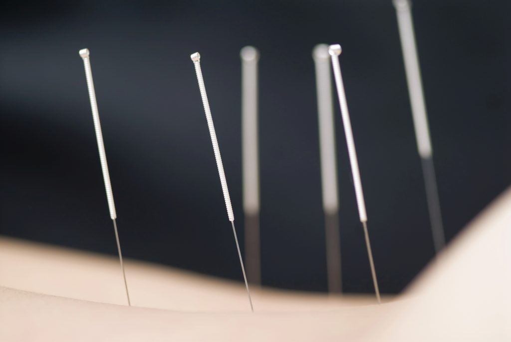 acupuncture, pain relief, chinese medicine, treatment