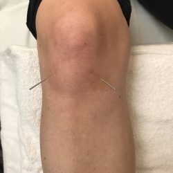 Knee Pain: Acupuncture Works Wonders!
