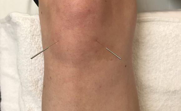 Knee Pain: Acupuncture Works Wonders!