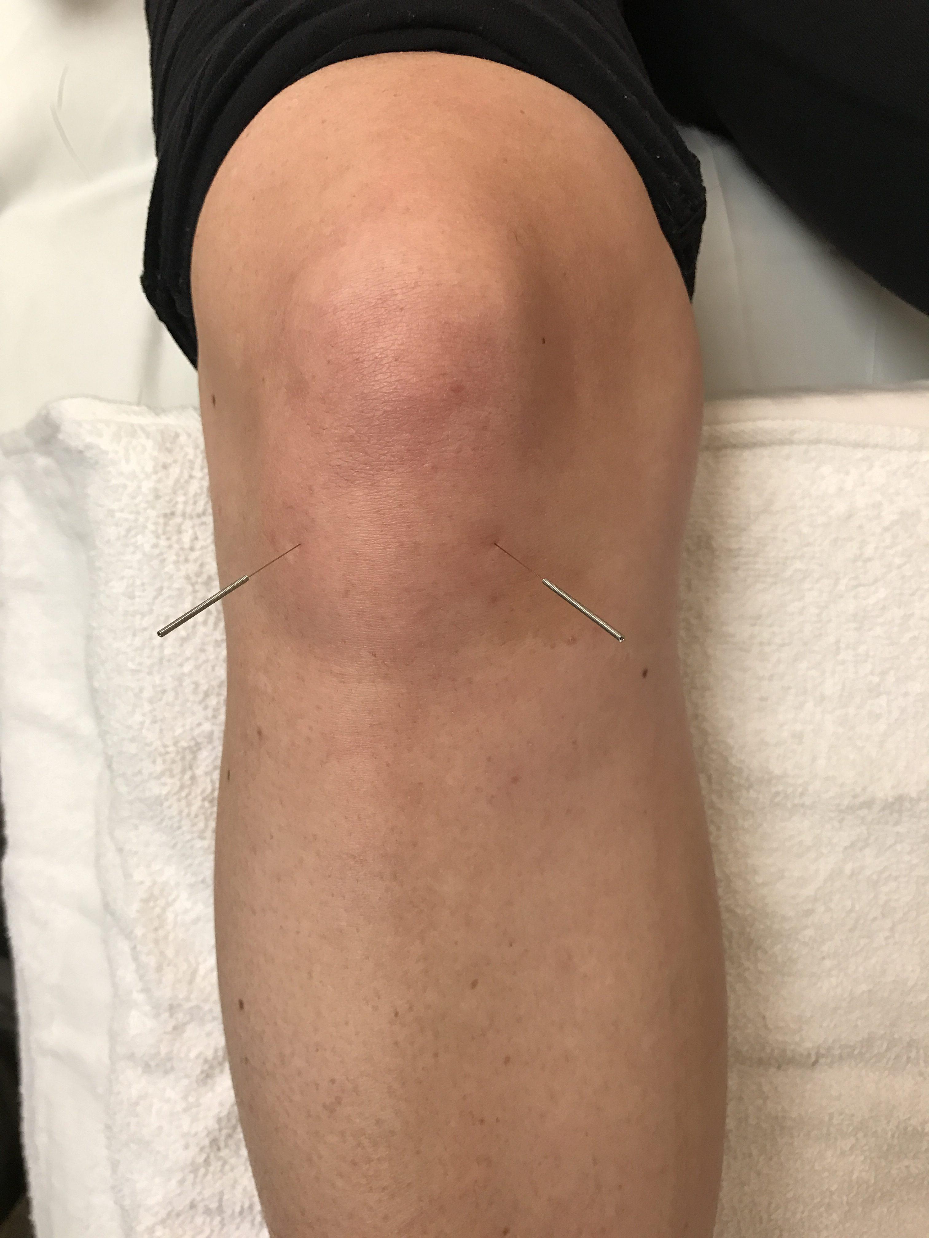knee acu
